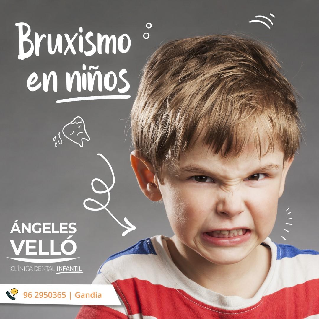 Bruxismo en niños