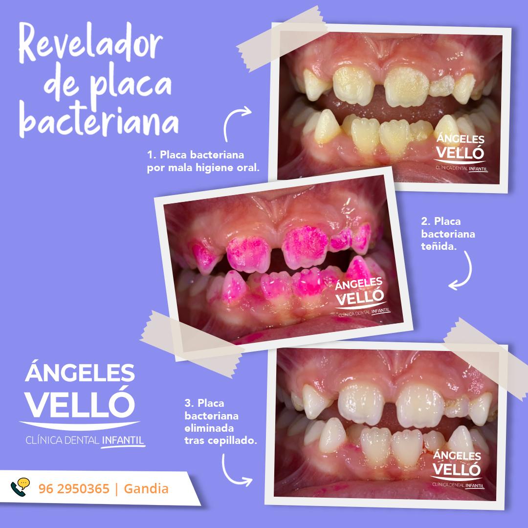 PLAC CONTROL revelador de placa dental (gotas)